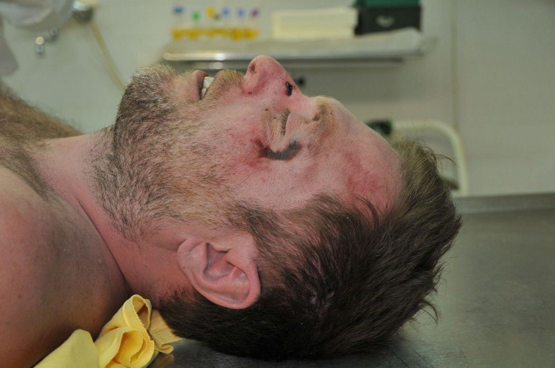 Riccardo Magherini cadavere all'obitorio