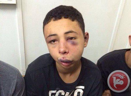 Tareq Abu Khdeir, pestato dalla polizia