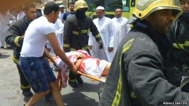 Uno dei feriti dell'attacco alla moschea di Qatif