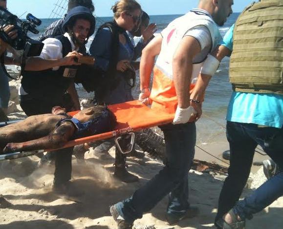 Gaza city, 16 luglio 2014.Uno dei bambini colpiti dai missili israeliani