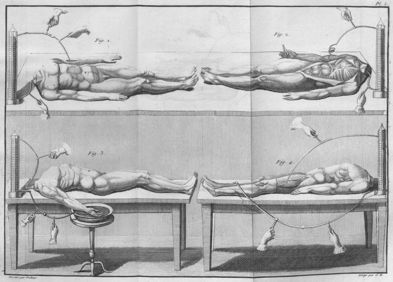 experiments with headless cadavers essai theorique et experimental sur le galvanisme 1804