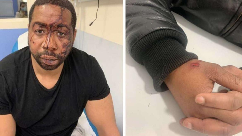 Il volto e le mani di Michel Zecler  dopo il pestaggio della polizia