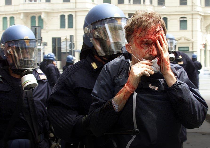Un manifestante ferito viene portato via dalla polizia